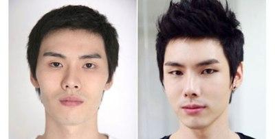 Korean eyelid surgery