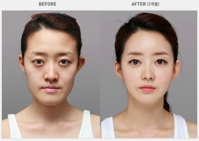 korean-plastic-surgery-before-and-after-1