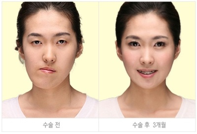 korean_plastic_surgery_39