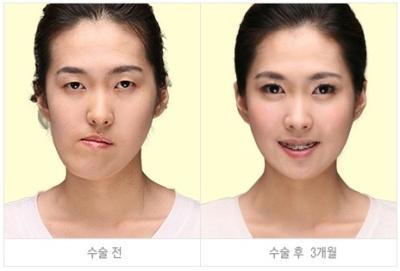 korean_plastic_surgery_39