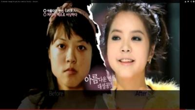 Korean TV show on plastic surgery